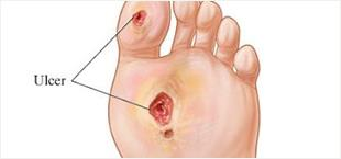Diabetic Ulcers